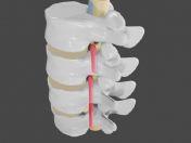 Protrusion and hernia in the lumbar spine