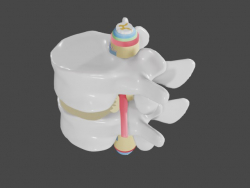 Hérnia intervertebral na coluna lombar